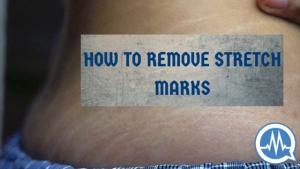#AskDrMalik: HOW DO I REMOVE STRETCH MARKS PERMANENTLY?